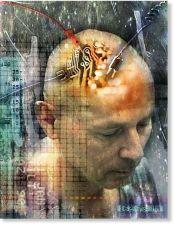 brain_implant3